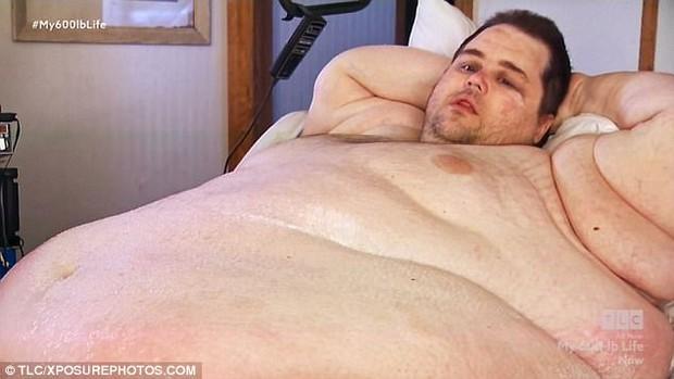 Người đàn ông béo tới nỗi lở loét da vì chỉ nằm ì một chỗ suốt 3 năm - Ảnh 1.
