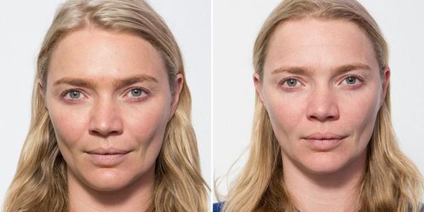 Siêu mẫu Jodie Kidd và cuộc thử nghiệm thức khuya: Chỉ trong 5 ngày mà da bị tàn phá khủng khiếp - Ảnh 2.