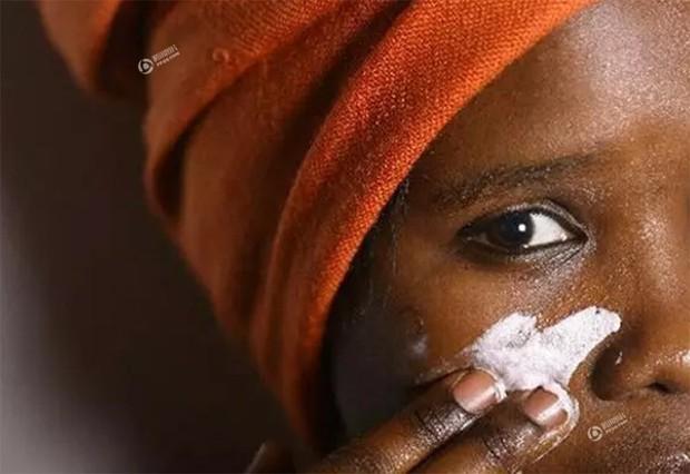 Chùm ảnh: Tẩy trắng da - công nghệ làm đẹp chẳng biết đường nào mà lần ở châu Phi - Ảnh 1.