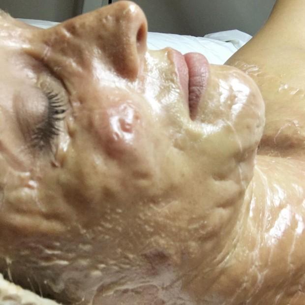 Phương pháp da rồng giá hơn 3 triệu đồng làm da bạn sần sùi, lồi lõm kỳ dị trước khi trở nên hồng hào, căng bóng - Ảnh 3.