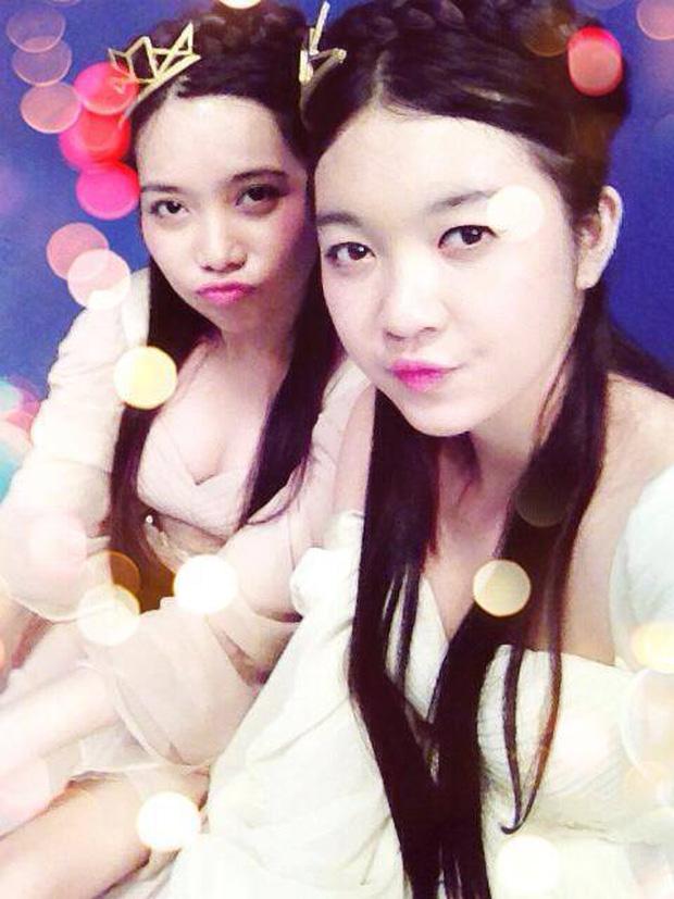 Thí sinh Hoa hậu Hoàn vũ sở hữu nhan sắc được so sánh với Lý Nhã Kỳ dính nghi vấn phẫu thuật thẩm mỹ - Ảnh 4.