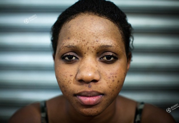 Chùm ảnh: Tẩy trắng da - công nghệ làm đẹp chẳng biết đường nào mà lần ở châu Phi - Ảnh 6.