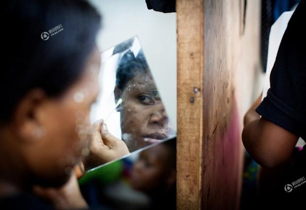 Chùm ảnh: Tẩy trắng da - công nghệ làm đẹp chẳng biết đường nào mà lần ở châu Phi - Ảnh 7.