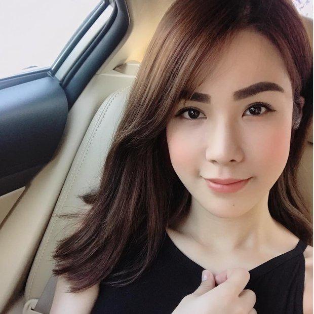 Con gái từ Hàn sang Việt cứ đập cả mặt với tiêm má tròn căng, lẽ nào xu hướng mặt phù sắp tiếm ngôi mặt V-line? - Ảnh 16.