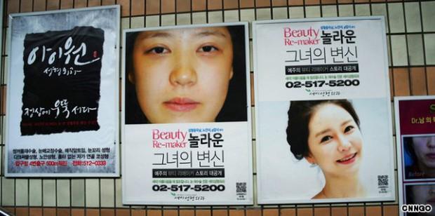 3 thiếu nữ sang Hàn quốc đập mặt đi xây lại xong không được lên máy bay về nước vì khác với ảnh hộ chiếu - Ảnh 2.
