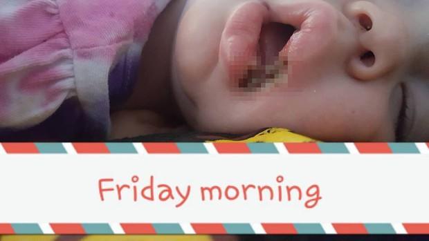 Để con nhỏ 19 tháng tuổi nghịch sạc điện thoại, khi người mẹ phát hiện ra thì đã quá muộn - Ảnh 3.