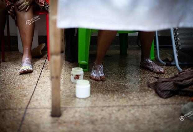 Chùm ảnh: Tẩy trắng da - công nghệ làm đẹp chẳng biết đường nào mà lần ở châu Phi - Ảnh 13.
