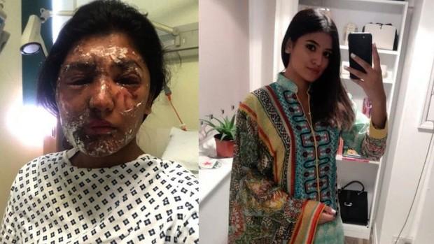 Anh: Nữ sinh từng bị tạt axit vào đúng dịp sinh nhật khoe ảnh hồi phục đáng kinh ngạc - Ảnh 3.