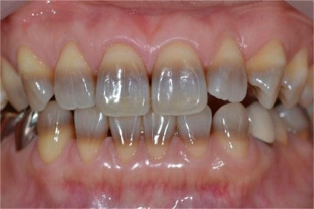4 trường hợp nhất định không được tẩy trắng răng - Ảnh 3.