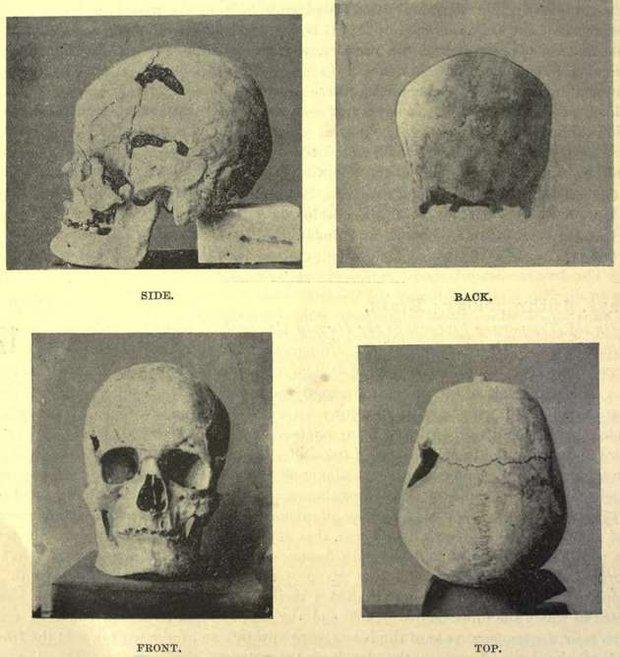 Bí ẩn về pharaoh khổng lồ duy nhất trong lịch sử đã được giải mã - Ảnh 4.