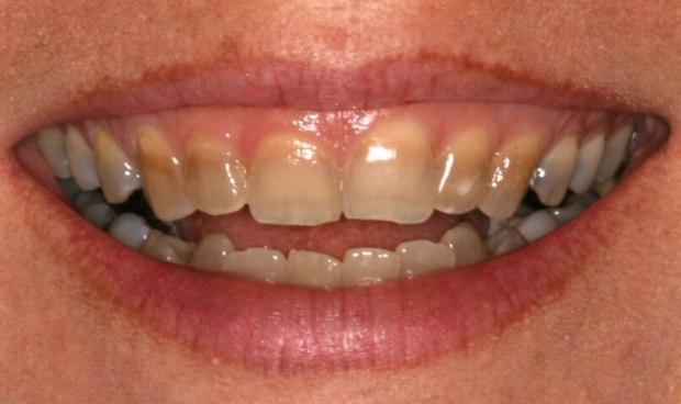 4 trường hợp nhất định không được tẩy trắng răng - Ảnh 4.