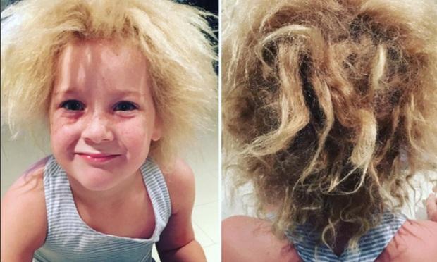 Cô bé 7 tuổi mắc hội chứng tóc bất trị giống nhà bác học Einstein - Ảnh 3.