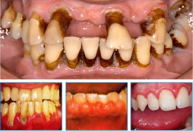 4 trường hợp nhất định không được tẩy trắng răng - Ảnh 1.