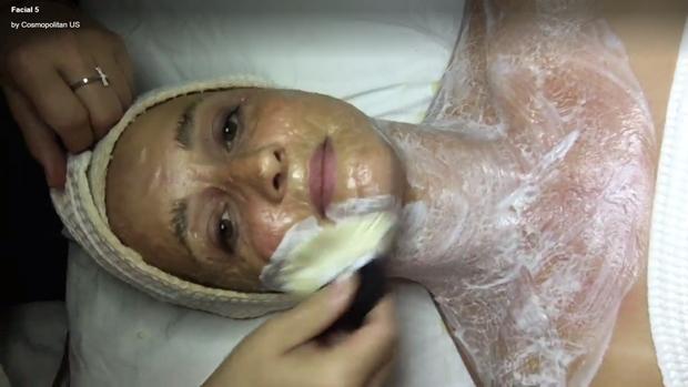 Phương pháp da rồng giá hơn 3 triệu đồng làm da bạn sần sùi, lồi lõm kỳ dị trước khi trở nên hồng hào, căng bóng - Ảnh 4.
