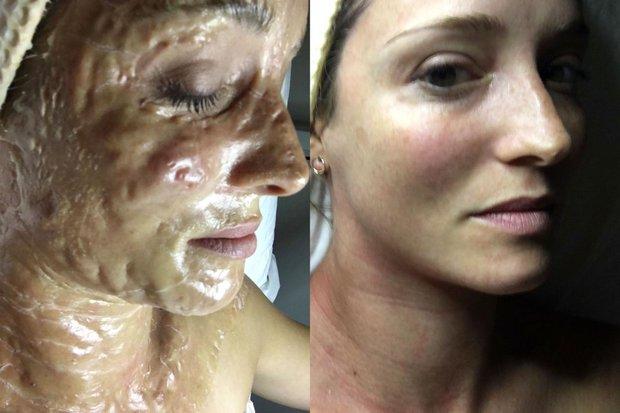 Phương pháp da rồng giá hơn 3 triệu đồng làm da bạn sần sùi, lồi lõm kỳ dị trước khi trở nên hồng hào, căng bóng - Ảnh 1.