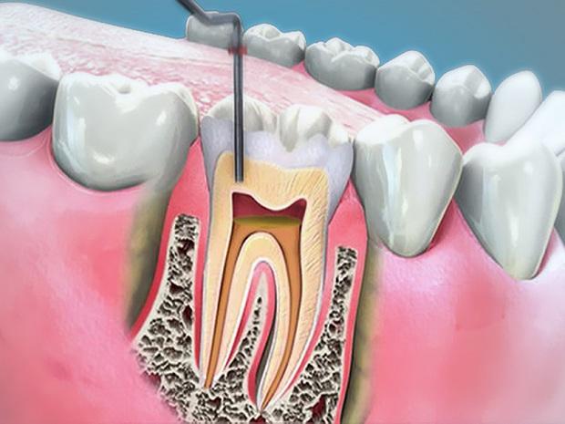 Dưới 16 tuổi, buồng tủy trong răng vẫn chưa thật ổn định