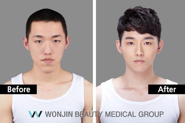 Nam giới Hàn Quốc đua nhau đi phẫu thuật thẩm mỹ để trở thành trai xinh như thần tượng - Ảnh 3.