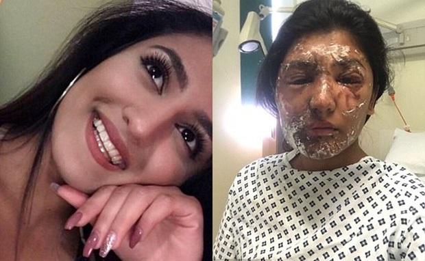 Anh: Nữ sinh từng bị tạt axit vào đúng dịp sinh nhật khoe ảnh hồi phục đáng kinh ngạc - Ảnh 1.