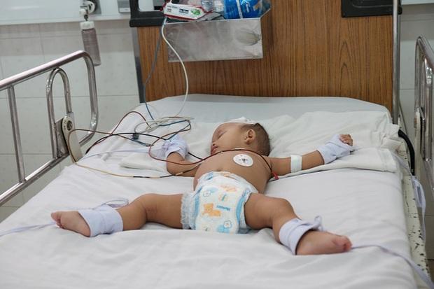 TP.HCM: Đã có ba trẻ tử vong vì sốt xuất huyết - Ảnh 2.