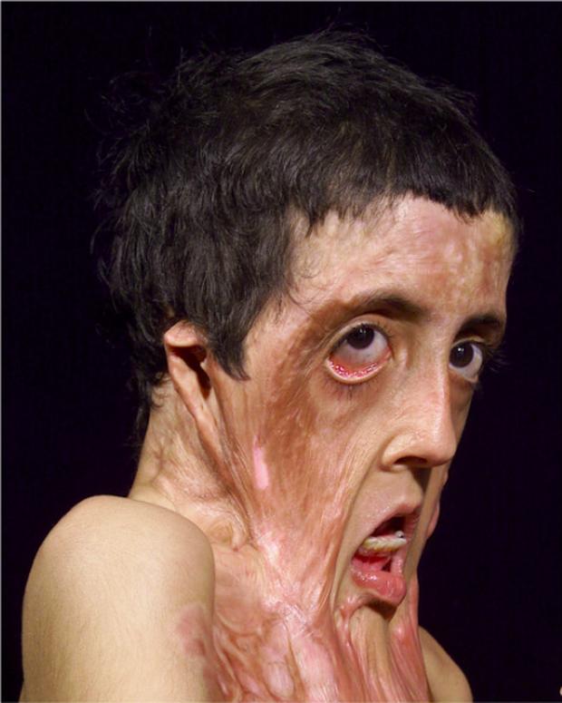 Con gái 9 tuổi bị bỏng đến tan chảy khuôn mặt, cha cầu cứu suốt 4 năm và phép màu đã đến - Ảnh 1.
