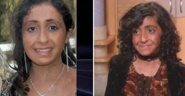 Con gái 9 tuổi bị bỏng đến tan chảy khuôn mặt, cha cầu cứu suốt 4 năm và phép màu đã đến - Ảnh 11.