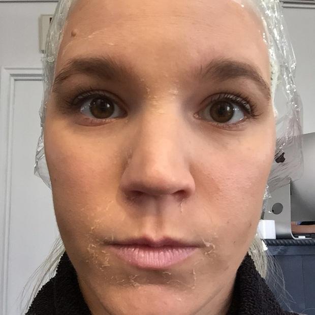 Cô nàng này đã dùng thử gel dán mụn thần thánh suốt thời gian qua và đây là kết quả - Ảnh 12.
