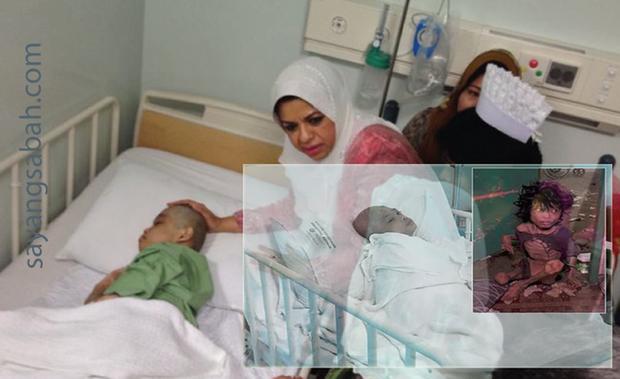 Bị mẹ đẻ nhốt 2 năm trời chỉ ăn đất và nước tiểu, cậu bé suýt chết vì suy dinh dưỡng giờ đã thế này - Ảnh 3.