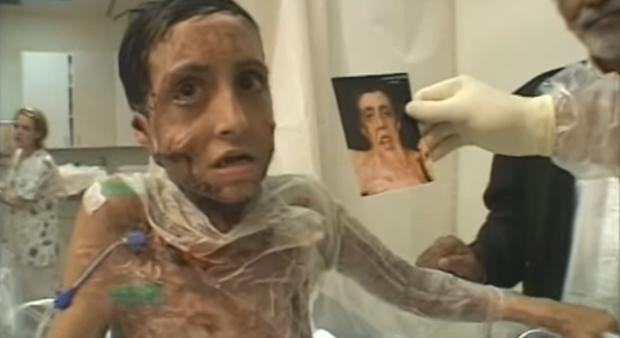 Con gái 9 tuổi bị bỏng đến tan chảy khuôn mặt, cha cầu cứu suốt 4 năm và phép màu đã đến - Ảnh 5.