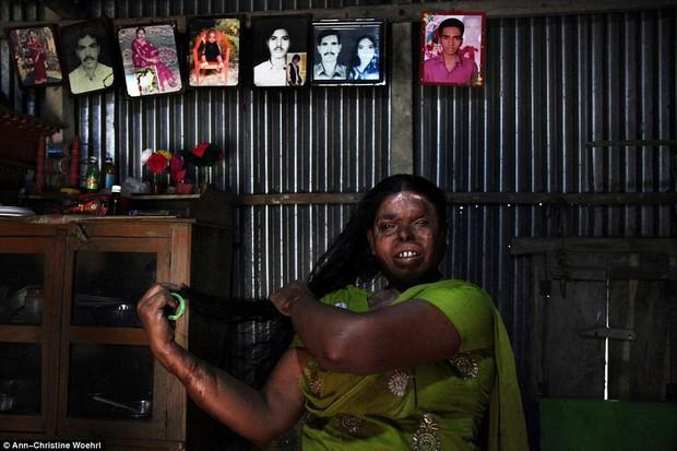 Chùm ảnh: Những gương mặt biến dạng đến ám ảnh của các nạn nhân bị tạt axit kinh hoàng - Ảnh 7.