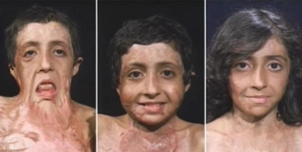Con gái 9 tuổi bị bỏng đến tan chảy khuôn mặt, cha cầu cứu suốt 4 năm và phép màu đã đến - Ảnh 8.