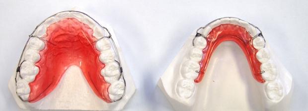 Chuyên gia cảnh báo: Đừng đợi quá muộn mới đi niềng răng - Ảnh 2.