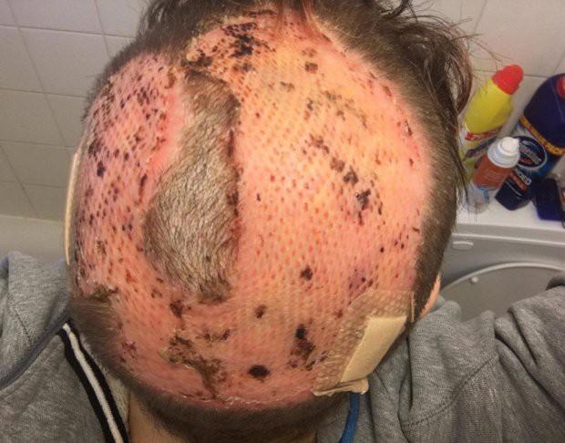 Tự nhuộm tóc màu mè tại gia, cô gái ăn quả đắng vì bị bong hết da đầu - Ảnh 4.