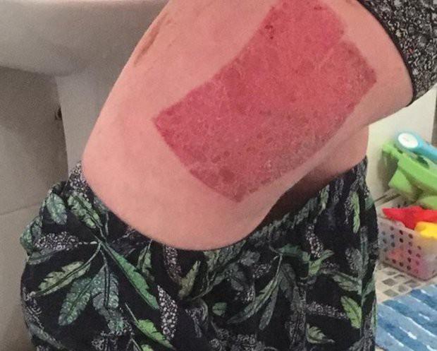 Tự nhuộm tóc màu mè tại gia, cô gái ăn quả đắng vì bị bong hết da đầu - Ảnh 5.