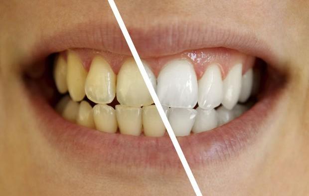 Chuyên gia bật mí ưu nhược điểm các phương pháp tẩy trắng răng phổ biến hiện nay - Ảnh 3.