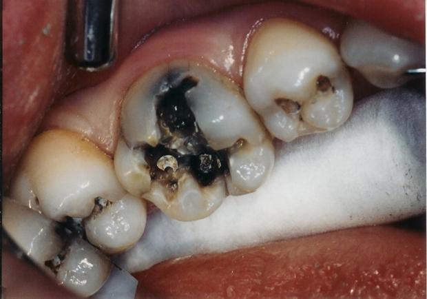 4 trường hợp nhất định không được tẩy trắng răng - Ảnh 2.