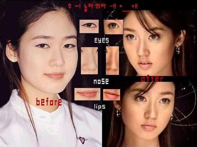 Những bức hình đầy ám ảnh về trung tâm phẫu thuật thẩm mỹ của thế giới: Hàn Quốc - Ảnh 12.