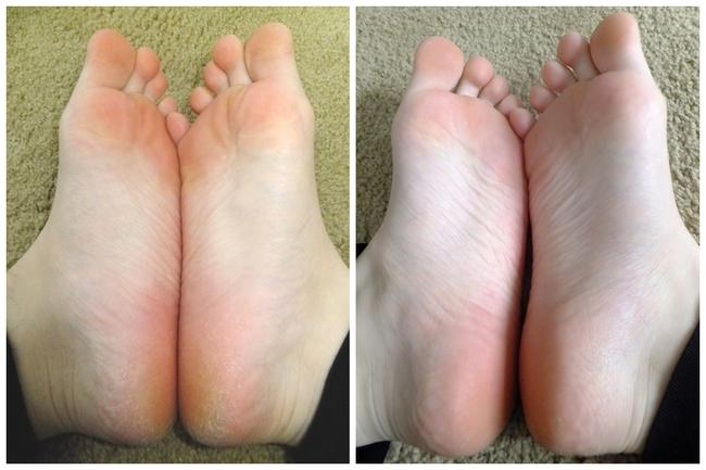 Bàn chân khô nẻ, sần sùi cỡ nào cũng trở nên trắng hồng nhờ nguyên liệu có ngay trong phòng tắm - Ảnh 7.