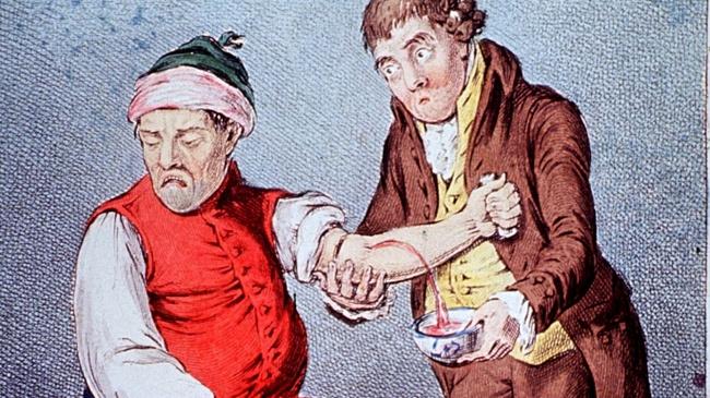 7 phương pháp chữa bệnh rùng rợn vẫn còn được áp dụng đến ngày hôm nay - Ảnh 4.