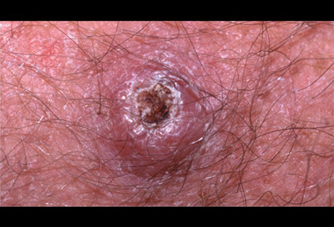 Những cách trị mụn tiềm ẩn nguy cơ gây ung thư da cao - Ảnh 3.