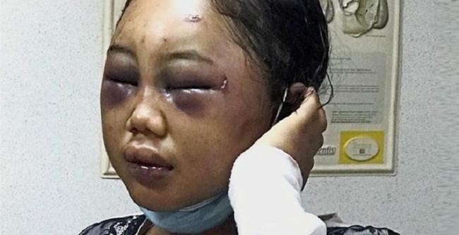 Nữ giúp việc 19 tuổi người Indonesia bị bà chủ Malaysia bạo hành dã man - Ảnh 1.