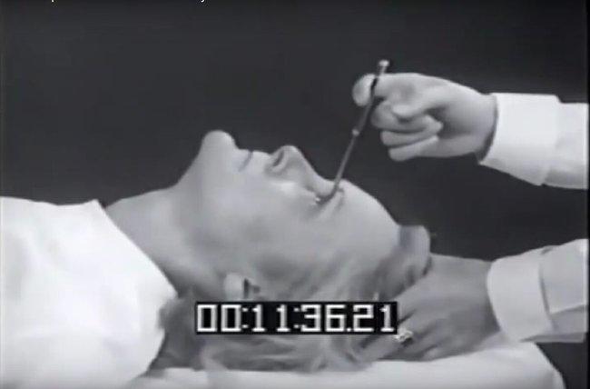7 phương pháp chữa bệnh rùng rợn vẫn còn được áp dụng đến ngày hôm nay - ảnh 9