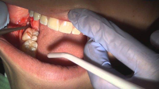 biến chứng khi nhổ răng khôn