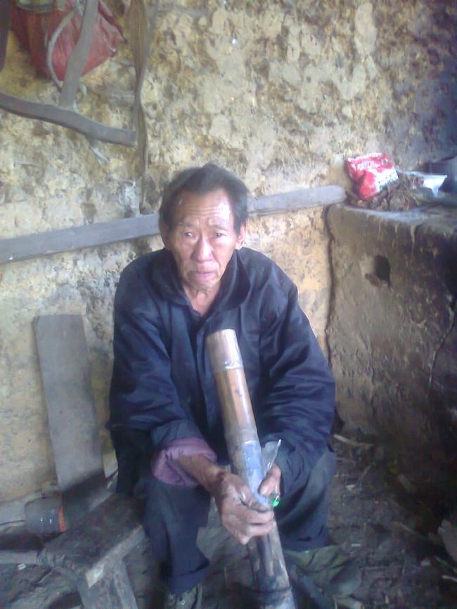 Người mọc đuôi ở Hà Giang: Vừa cắt đuôi thì lăn ra... ốm - ảnh 2