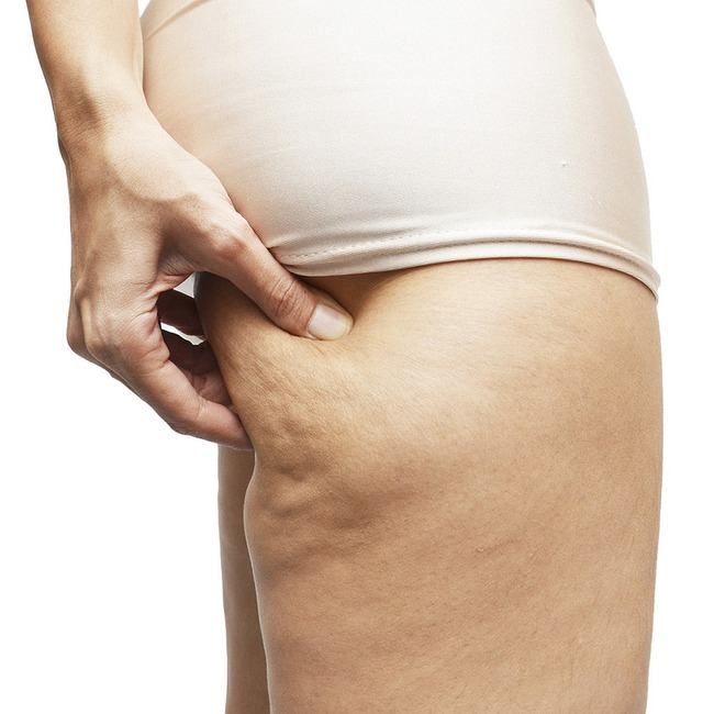 Xác định 3 loại mỡ thừa phổ biến và cách giảm cân hiệu quả nhất dành cho bạn - Ảnh 5.