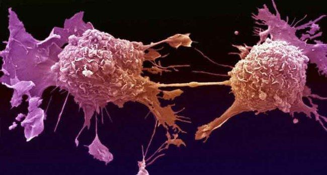 Bắt tế bào ung thư tự hủy - đột phá trong điều trị vấn nạn của thế kỷ - Ảnh 1.