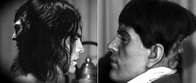 Bí ẩn người đàn ông điển trai nhưng mang 2 gương mặt và sự thật bất ngờ được giải mã - Ảnh 4.