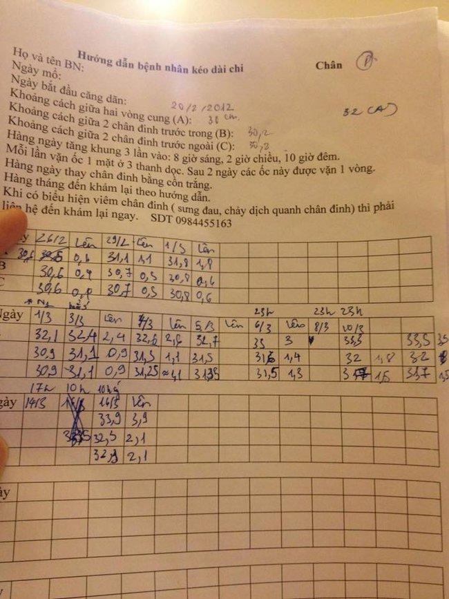 Nhật ký kéo dài chân từ 1m67 đến 1m76 (9 cm) của chàng trai Hà Nội - ảnh 11