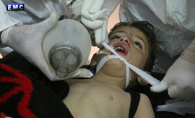 Nạn nhân của chất độc hóa học trong vụ tấn công thảm họa Syria đã phải chịu đựng những gì? 5