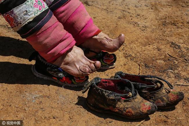 Mục sở thị những đôi chân gót sen cuối cùng của phụ nữ Trung Quốc thời hiện đại - Ảnh 2.
