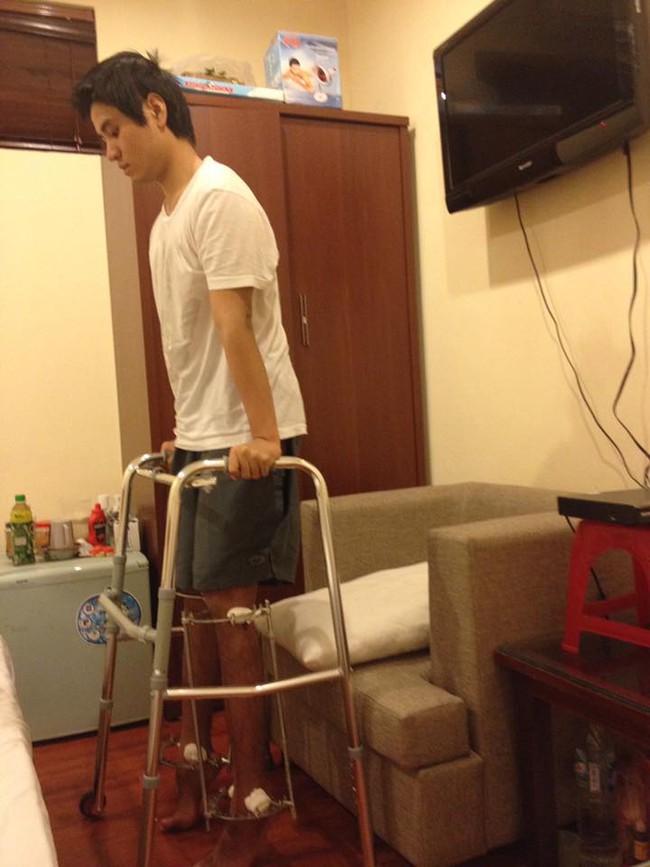 Nhật ký kéo dài chân từ 1m67 đến 1m76 (9 cm) của chàng trai Hà Nội - ảnh 9
